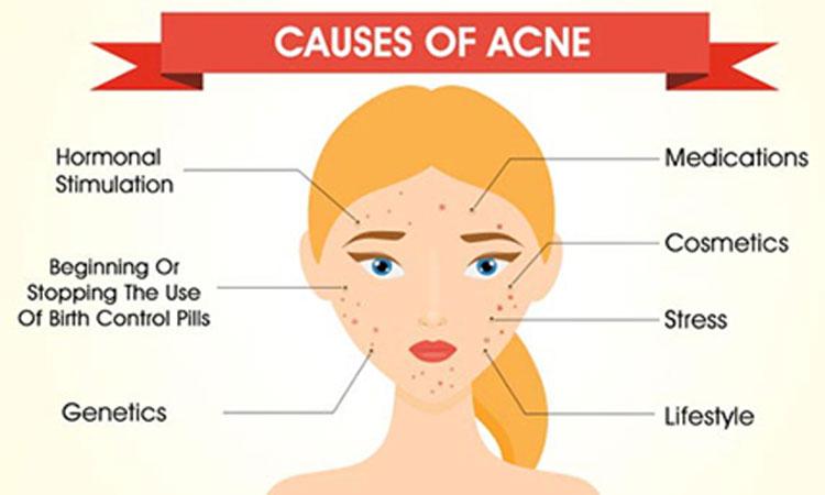 Remove Acne Vulgaris Scars Skin Beauty Skin Beauty