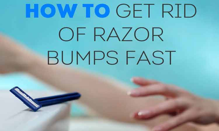 Natural Remedies on 6 Home Remedies To Get Rid Of Razor Bumps Fast